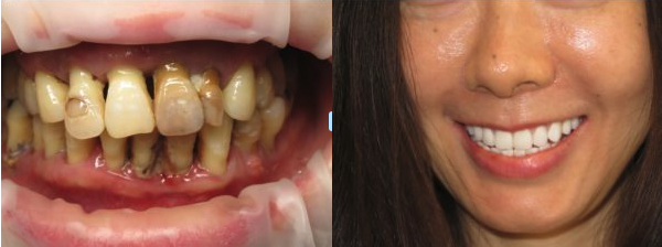 Full Mouth Restoration Before & After