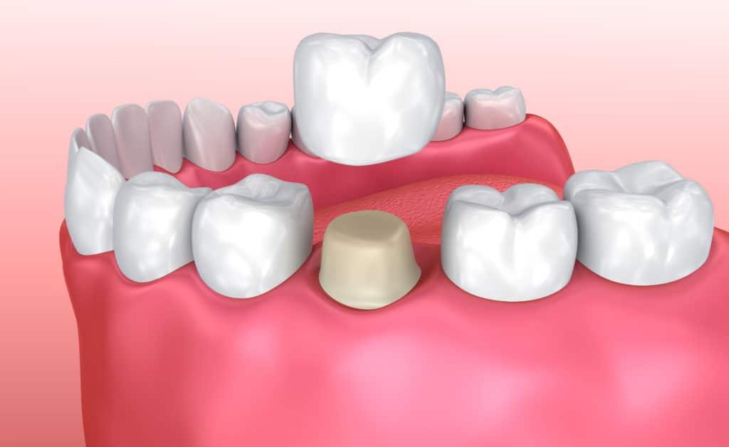 Dental Crown NYC   Tooth Crown Manhattan