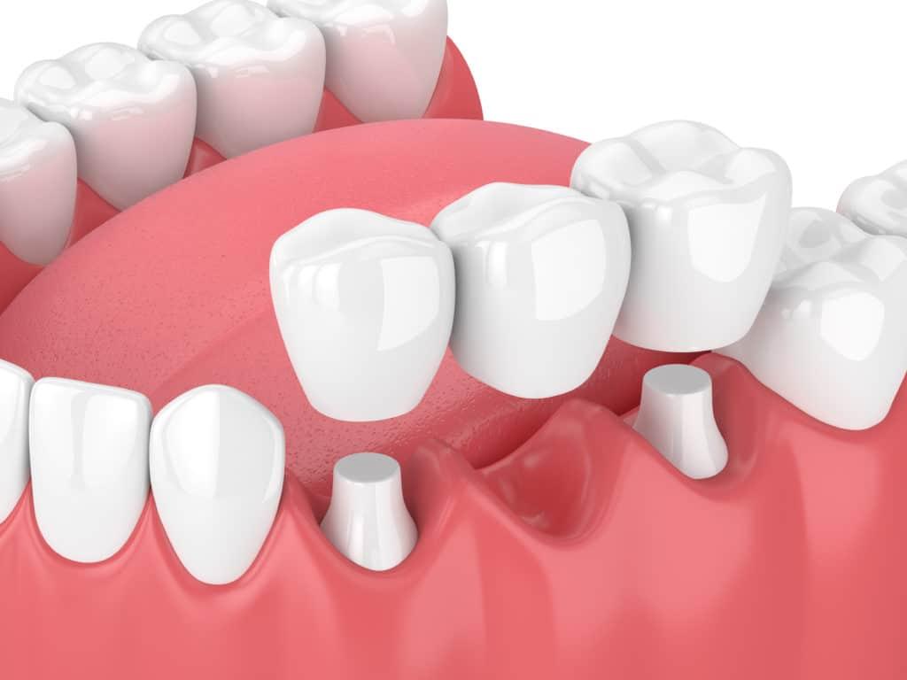 Dental Bridges NYC | Tooth Bridges Manhattan