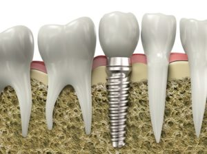 Dental Implants NYC | Tooth Implant Manhattan NY
