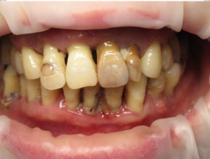 Before | Prosthodontics of New York | New York NY