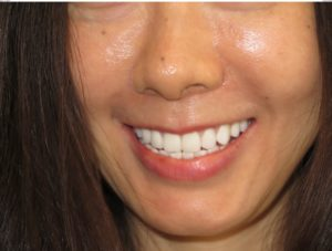 After | Prosthodontics of New York | New York NY